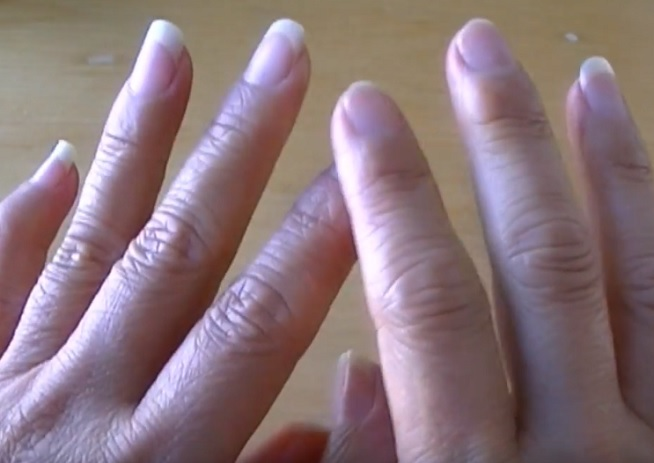 Popraskaná pokožka na rukou: Babské rady, které fungují